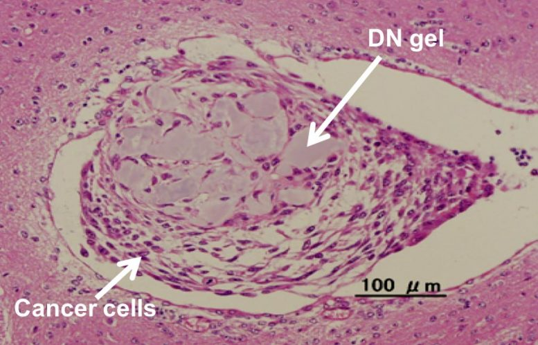 Tumor Formation in Mouse Brain
