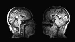 Two Brain MRI Scan