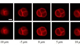 Two-Photon Microscopy Images
