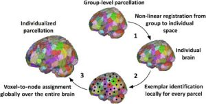 Understanding Ourselves Through Neuroimaging and Algorithms