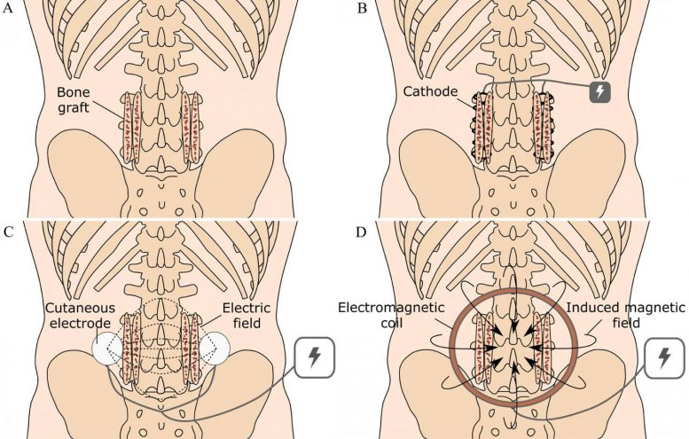 Use of Electrical Stimulation in Producing Spinal Fusion