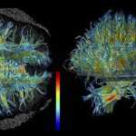 White Matter Changes Allow Older Brains to Learn