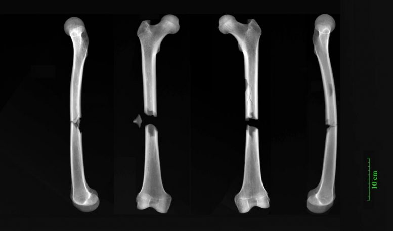 X-rays of Friar Femur Fractures
