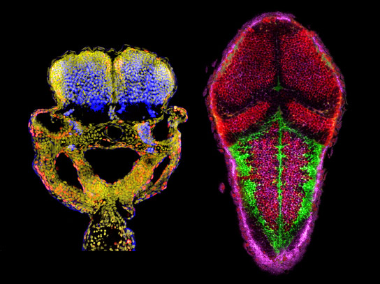 Yale Identifies Key Process in Brain Development