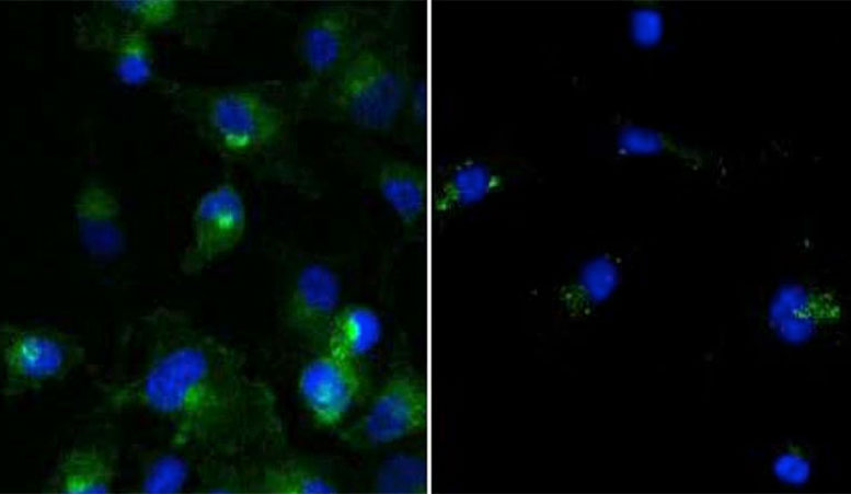 Yale Research Shows Cellular Clean-Up Can Also Sweep Away Forms of Cancer