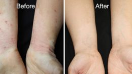 Yale Researchers Successfully Treat Eczema with Arthritis Drug