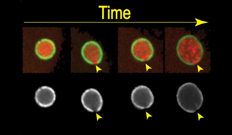 Yale Researchers Track How Cells Repair Rips in DNA's Protective Membrane