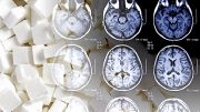 Yale Shows Fructose is Generated in the Human Brain
