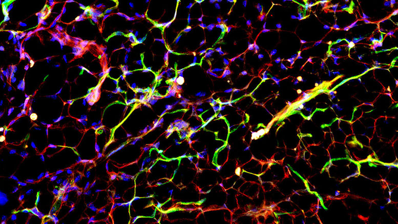 Yale Study Identifies a Therapeutic Target for Diabetes