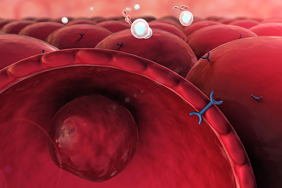Yale Study Reveals Protein to Target in Type 2 Diabetes