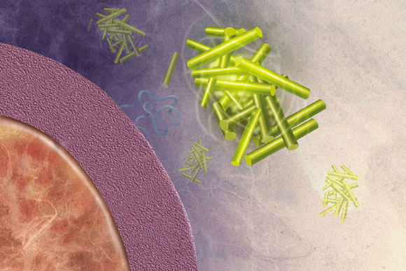 Yeast Protein Offers Clues to How Alzheimer's Disease Begins