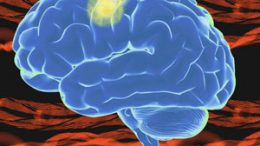 after a stroke, these muscle synergies are activated in altered ways