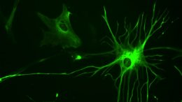 astrocyte cells help the brain respond to visual stimuli