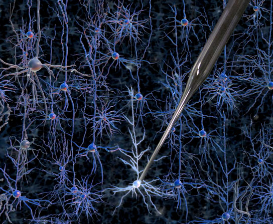 automated way to record electrical activity inside neurons in the living brain