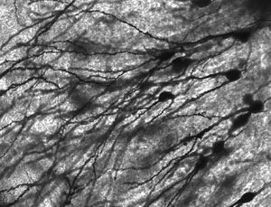 brain cells repress neural activity in specific mathematical ways