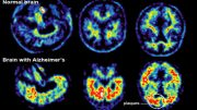 brain-with-alzheimer-without