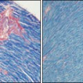 Heart tissue in mice is one of several types that benefit from more BubR1 protein. Mice with extra BubR1 have less cardiac fibrosis (pink, image on right) compared with controls (left). Credit: Adapted from D. J. Baker et al., Nature Cell Biology, Advance Online Publication (2012)