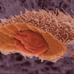 Cancer Mutations Slow Tumor Growth