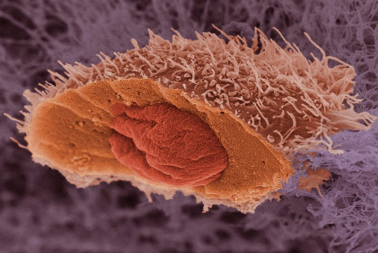 cancer-mutations-slow-tumor-growth
