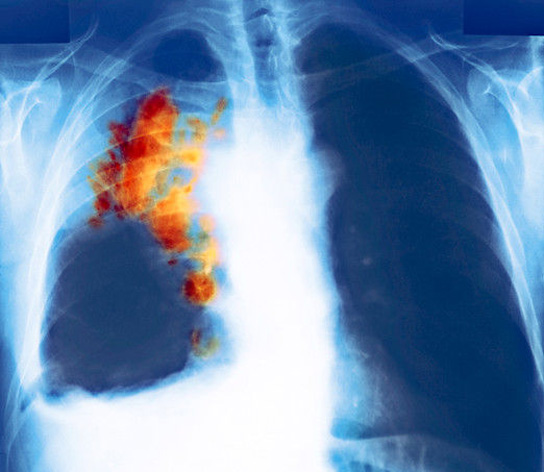 Cataloging Studies Of Lung Cancer Will Help Boost