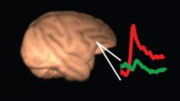 consciousness is not localised in a unique cortical area