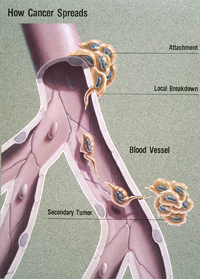 diagram illustrates the process of metastisis