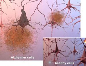 difference-between-healthy-alzheimer-cells