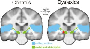 discovered an important neural mechanism underlying dyslexia
