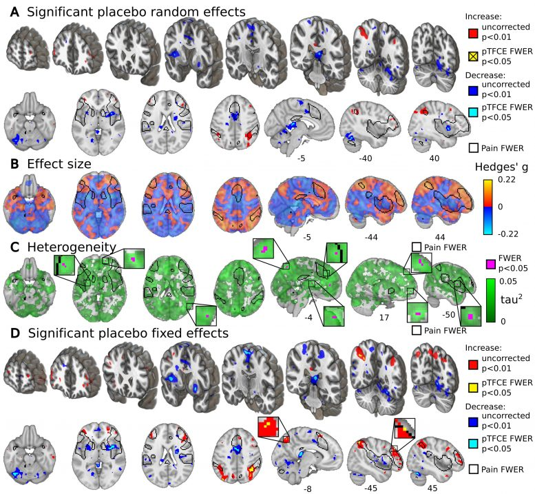 fMRI Activity Placebo Effects