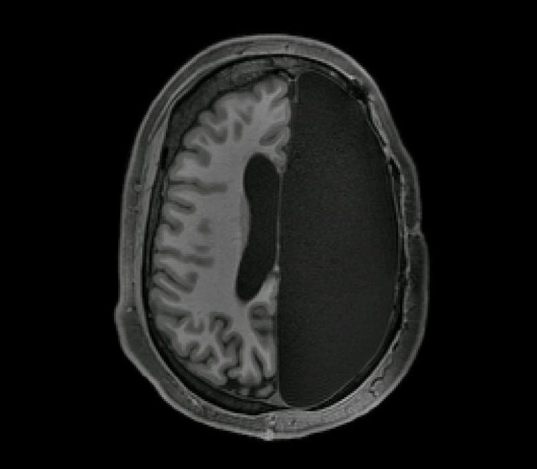 fMRI Scan of Adult with One Brain Hemisphere Removed