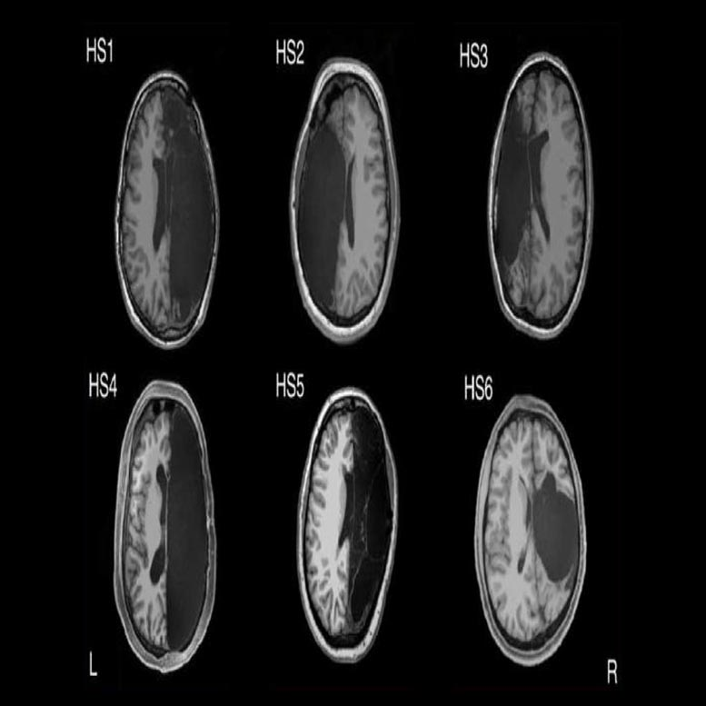 fMRI Scans of Adults with One Brain Hemisphere Removed