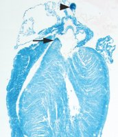 family of proteins named after Popeye play an essential role in allowing the heart to respond to stress