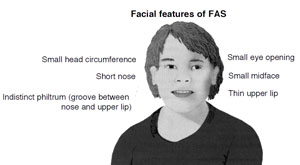 An Analysis of Fetal Alcohol Syndrome (FAS)