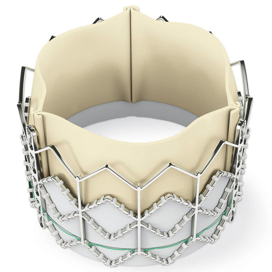 first-transcatheter-aortic-valve-replacement-TAVR