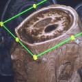 fmri-scan-vegetative-state-patient