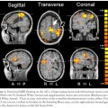 functional-neuroimaging