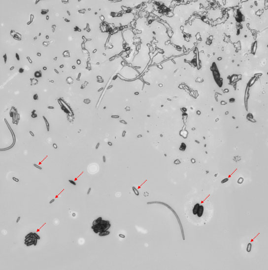 fungal spores are visible in a large aerosol particle