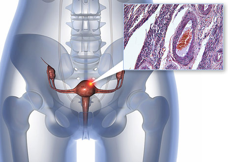 genes-behind-aggressive-endometrial-cancer