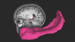 hippocampus is a key brain structure important to learning