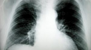 lung-cancer-x-ray