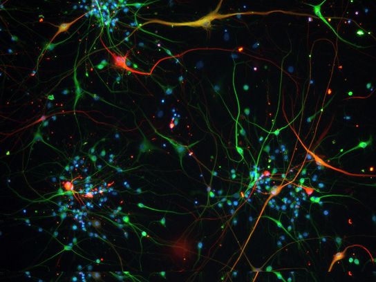 more-stem-cell-auditory-neurons