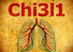 protein Chi3l1 role in regulating the immune response to pneumonia