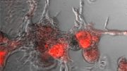 protein phosphatase SHP2 promotes breast cancer with poor prognosis