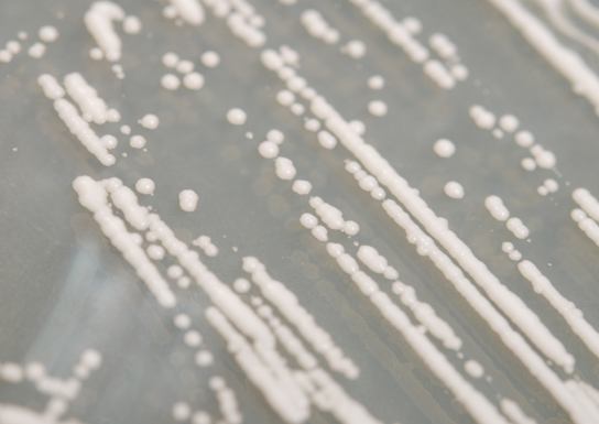 researchers learn how populations collapse from yeast