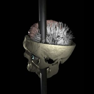 researchers map damaged connections in Phineas Gage's brain