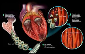 stem-cells-heart