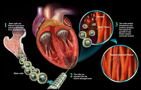 Stem Cells Help Re Grow Healthy Heart Muscle After Heart