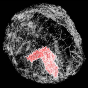 technique images breast tumors in 3-D