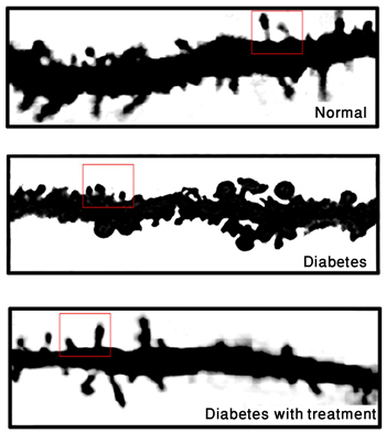 unexpected source of diabetic neuropathy pain