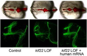 zebrafish can be a useful tool for studying the genes that contribute to such disorders